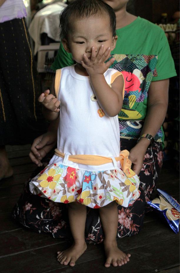 Ли Яти Мин — девочка из Бирмы с 26 пальцами