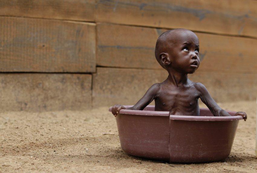 Голод на Африканском Роге