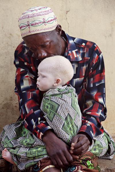 За что альбиносов в Танзании рубят на куски