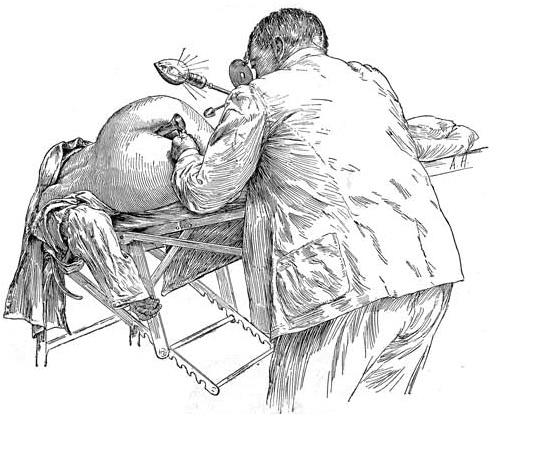 Иллюстрация женского клитора