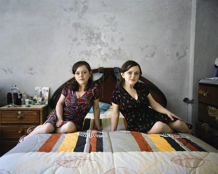 Суперлюди – эквадорские карлики с синдромом Ларона